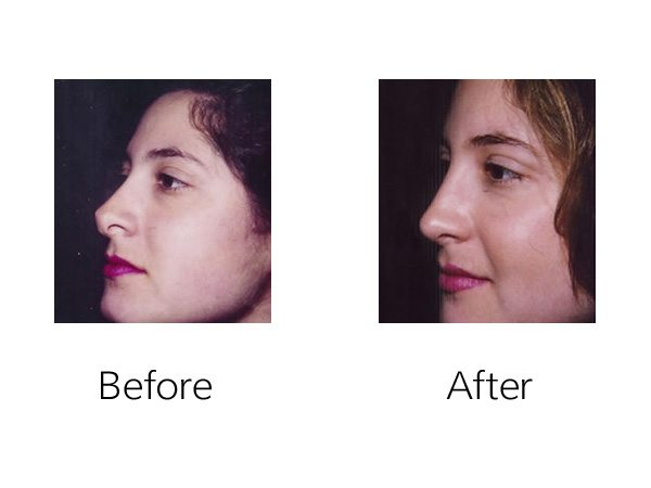 Secondary Rhinoplasty Before & After