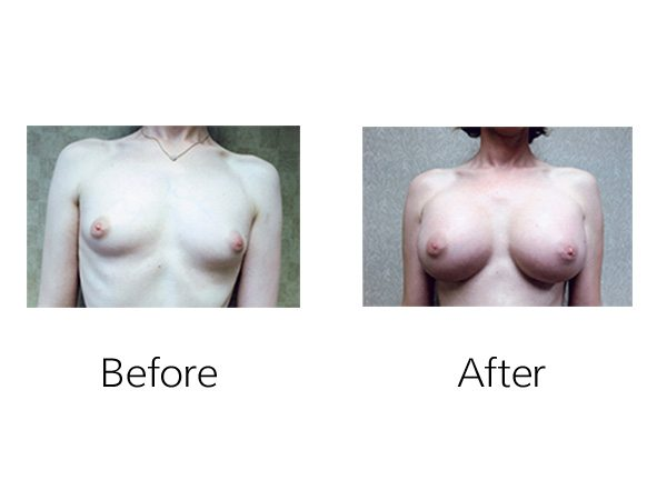 Transgender Augmentation Before & After