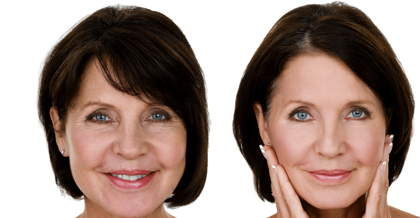 Before & After Gallery - The Plastic Surgery Group, PC - Dr. Uria